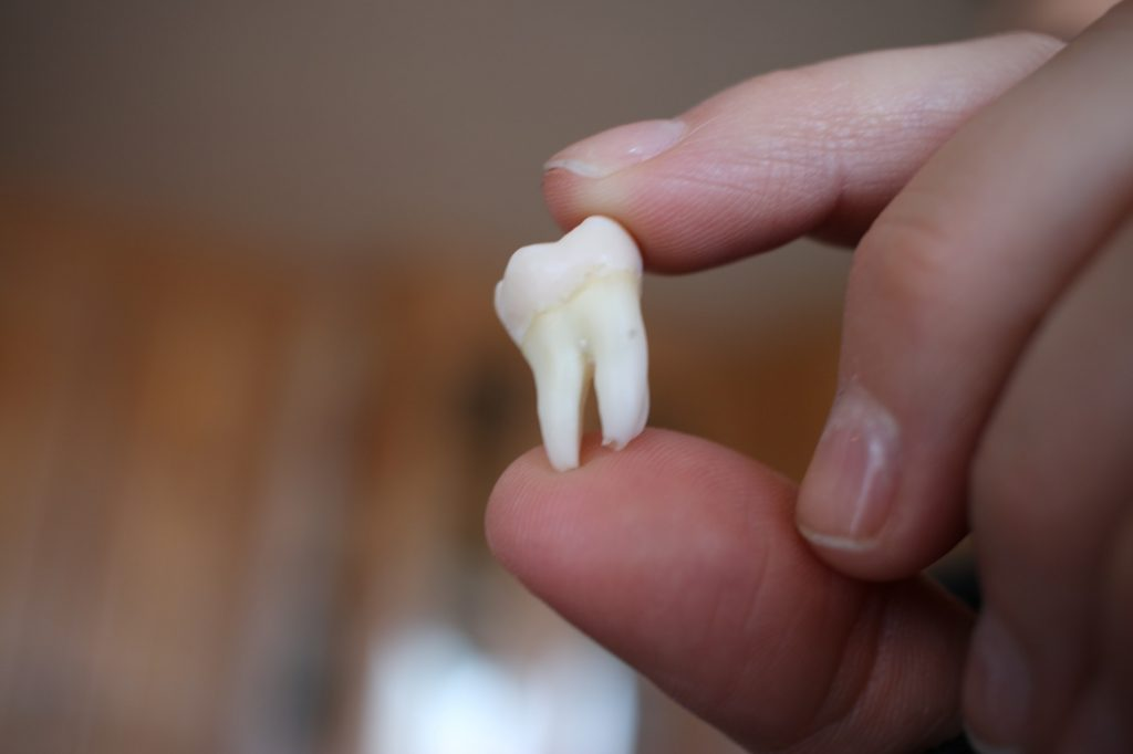 Image of an extracted Wisdom Tooth
